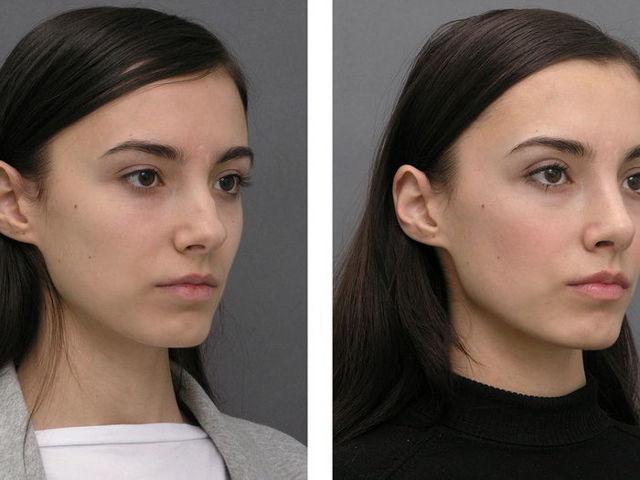 Как проходит контурная пластика носа?